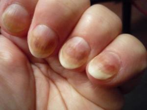 грибок ногтей на пальцах рук