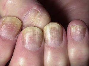 грибок ногтей лечение дома