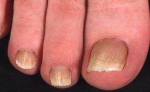 Лечить грибок ногтей