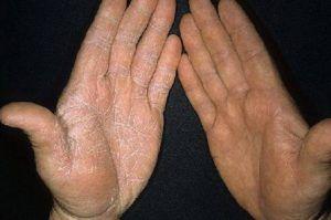 Симптомы грибка на руках