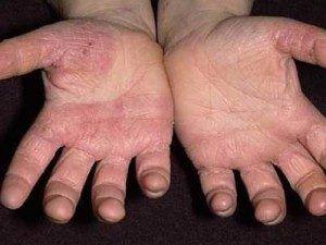 Грибок на руках - лечение