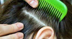 Грибок кожи головы - лечение