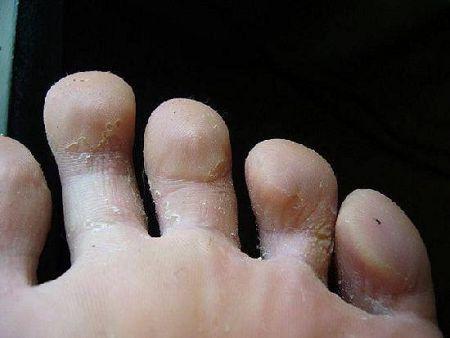 Грибок на ногах, чем лечить?