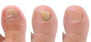 Грибок на ногах -лечение