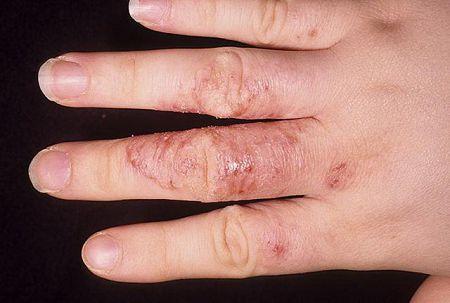 Чем лечить грибок ногтей на руках?