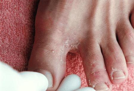 Грибок между пальцев ног, как возникает и почему?