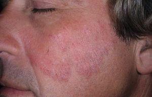 Микоз кожи тела