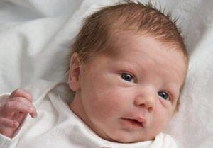 Лечение новорожденного