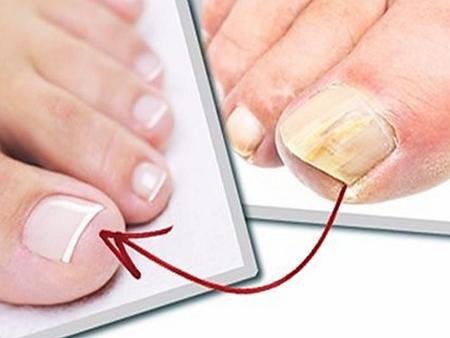 Эффективное средство от грибка ногтей