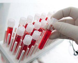 Анализ крови на грибок