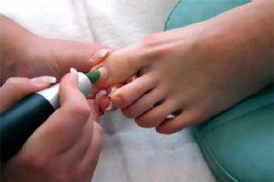 Аппаратная чистка ногтей