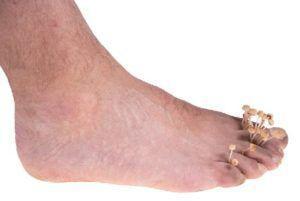 Грибок на ногах причины и лечение