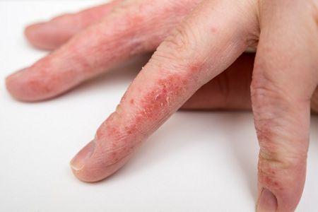 Как лечить грибок между пальцами?