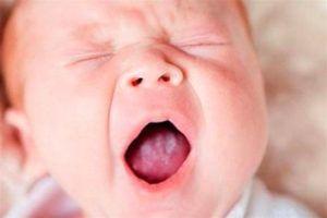 Молочница на языке у ребенка