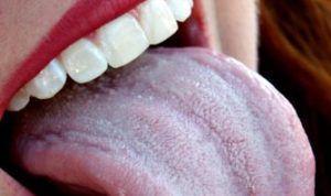 Молочница на языке: лечение