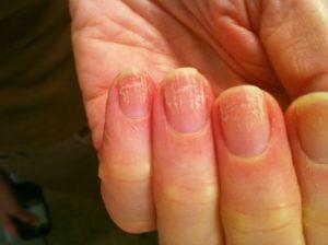 Грибок ногтей начальная стадия