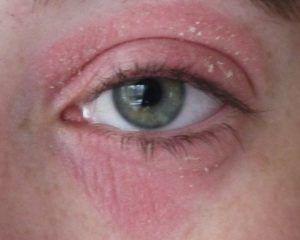 Кандидоз глаз