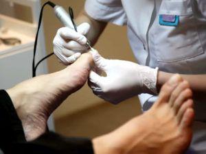 Медицинский педикюр при грибке