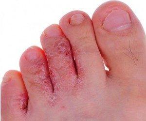 Косточки на пальцах ног как избавиться