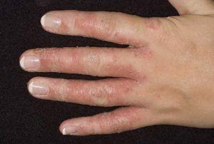 Мазь от грибка на руках между пальцами