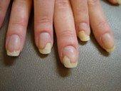 Грибок ногтей: начальная стадия развития