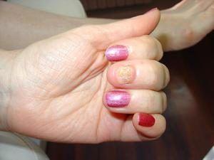 Народные средства от грибка ногтей на руках