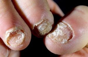 Лечение грибка ногтей запущенная форма