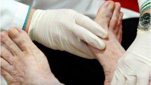 Масло от грибка ногтей – метод старой медицины