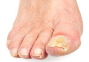 Медный купорос от грибка ногтей на ногах