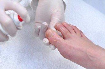 Какой врач лечит грибок ногтей на ногах
