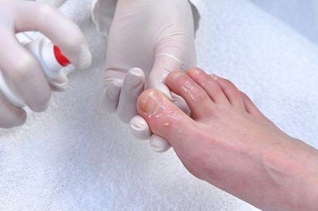 Врач который лечит грибок ногтей на ногах