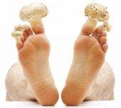 Грибок ногтей на ногах, чем лечить?