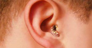 Лечить грибок в ушах