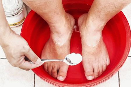 Как лечить межпальцевый грибок на ногах в домашних условиях