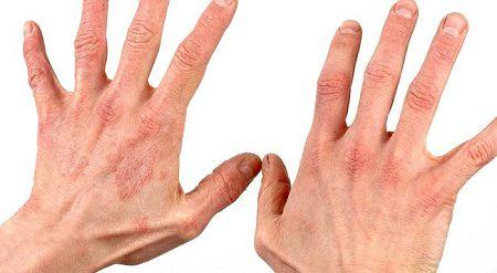 Кандидоз кожи: лечение и симптомы молочницы на коже