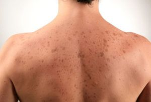 Как вылечить грибок кожи на спине thumbnail