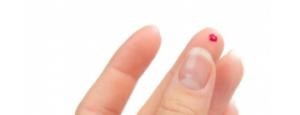 Воспаление при кандидозе лейкоциты thumbnail