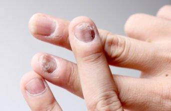 Грибковые поражения кожи и ногтей