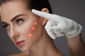 Лазерная косметология и ее особенности